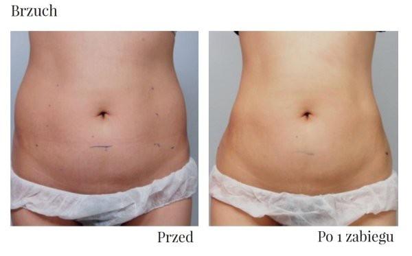 Brzuch HIFU przed i po